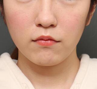 オザキクリニックLUXE新宿の人中短縮&口角挙上の症例写真(アフター)