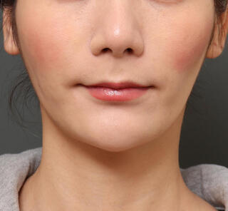 オザキクリニックLUXE新宿の顔の脂肪吸引(頬・アゴ下)+メーラーファットの症例写真(アフター)