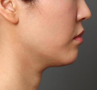 オザキクリニックLUXE新宿の顔の脂肪吸引(頬・アゴ下)の症例写真(ビフォー)