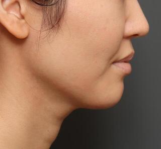 オザキクリニックLUXE新宿の顔の脂肪吸引(頬・アゴ下)の症例写真(アフター)
