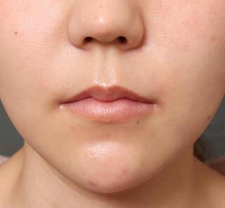 オザキクリニックLUXE新宿の人中短縮&口角挙上 鼻翼挙上の症例写真(ビフォー)