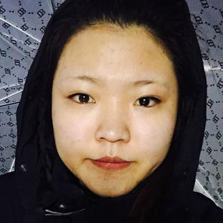 マーブル整形外科の鼻形成手術(鼻筋+鼻先)+顎下脂肪吸引の症例写真(ビフォー)