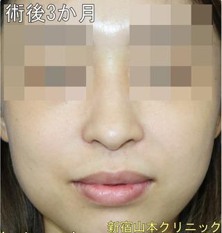 山本クリニックの小鼻縮小術の症例写真(アフター)