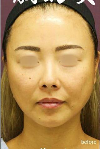 新宿TAクリニックの鼻中隔延長+鼻尖縮小+軟骨移植+鼻根プロテーゼ の症例写真(ビフォー)