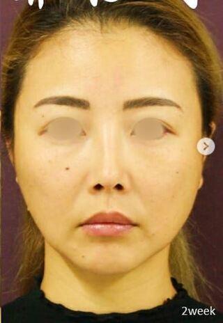 新宿TAクリニックの鼻中隔延長+鼻尖縮小+軟骨移植+鼻根プロテーゼ の症例写真(アフター)