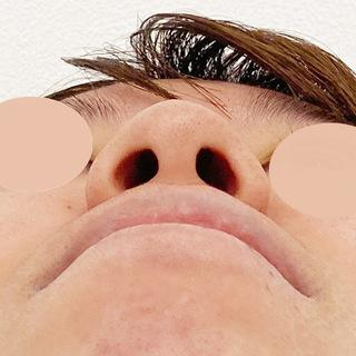 A CLINIC(エークリニック)銀座院の団子鼻をツンと高く!A式鼻先シャープ術、鼻先縮小術、小鼻縮小術の処置後2週間の症例です♪【A式鼻先シャープ術/鼻先縮小術/小鼻縮小術】の症例写真(ビフォー)