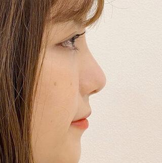 A CLINIC(エークリニック)銀座院の団子鼻でお悩みの方…A式鼻先シャープ術でツンと高いお鼻に変身しませんか?【A式鼻先シャープ術】の症例写真(ビフォー)