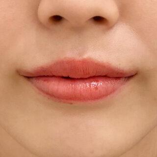A CLINIC(エークリニック)銀座院の口角挙上術でキュッと上がった口角を半永久的に手に入れませんか?♪【口角挙上(スマイルリフト)/スマイルリップ】の症例写真(アフター)