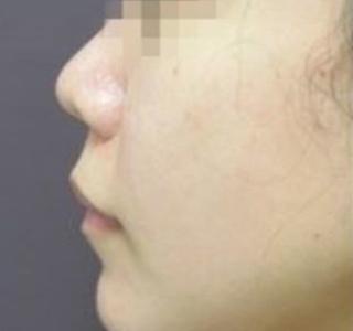 銀座TAクリニックの鼻尖縮小術+鼻尖4Dノーズの症例写真(ビフォー)