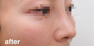 高崎TAクリニックアソシエの鼻尖4Dノーズ+鼻尖縮小術の症例写真(アフター)