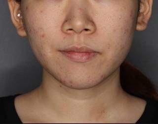 SELECT CLINIC(セレクトクリニック)表参道院の鼻翼縮小術+鼻翼挙上術の症例写真(ビフォー)