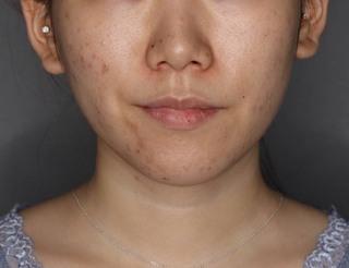 SELECT CLINIC(セレクトクリニック)表参道院の鼻翼縮小術+鼻翼挙上術の症例写真(アフター)