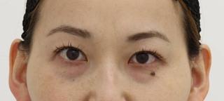 SELECT CLINIC(セレクトクリニック)大阪茶屋町院の下眼瞼クマたるみ取り術の症例写真(ビフォー)