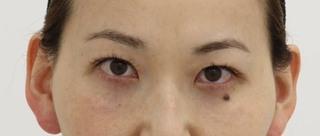 SELECT CLINIC(セレクトクリニック)大阪茶屋町院の下眼瞼クマたるみ取り術の症例写真(アフター)