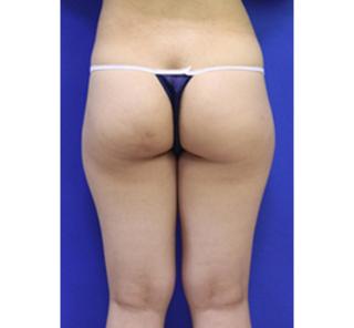 オザキクリニックLUXE新宿の脂肪吸引(おしり太もも全周)の症例写真(ビフォー)