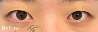 グローバルビューティークリニック 大阪院の【たるみ取り併用全切開二重術+韓流目頭切開】の症例写真(ビフォー)