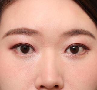 オザキクリニックLUXE新宿の目頭切開+目尻切開の症例写真(アフター)