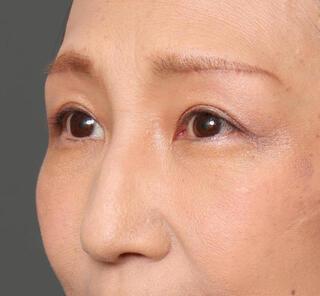 オザキクリニックLUXE新宿の鼻プロテ+耳介軟骨移植+鼻尖形成+ハンプ削り+アクアミド除去の症例写真(ビフォー)