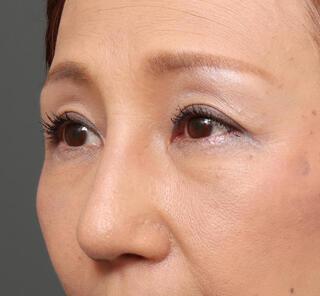 オザキクリニックLUXE新宿の鼻プロテ+耳介軟骨移植+鼻尖形成+ハンプ削り+アクアミド除去の症例写真(アフター)
