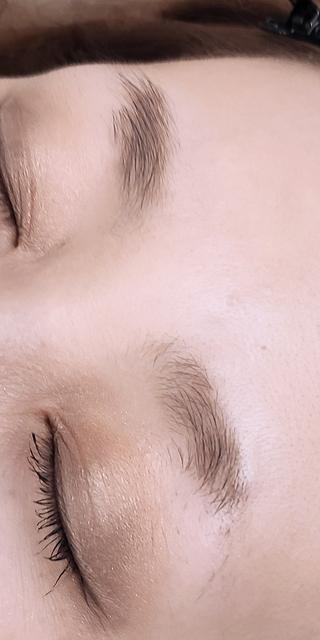 セルリアンタワーイセアクリニック(東京イセアクリニック渋谷院)のフェザリーブロウの症例写真(ビフォー)
