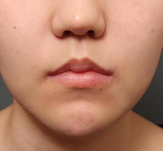 オザキクリニックLUXE新宿の人中短縮&口角挙上 鼻翼挙上の症例写真(アフター)