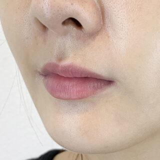 A CLINIC(エークリニック)銀座院のナチュラルに口角をアップ♡スマイルリップ処置前と処置直後です【スマイルリップ】の症例写真(ビフォー)