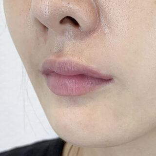 A CLINIC(エークリニック)銀座院のナチュラルに口角をアップ♡スマイルリップ処置前と処置直後です【スマイルリップ】の症例写真(アフター)
