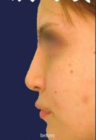 新宿TAクリニックの他院鼻修正の症例写真(ビフォー)