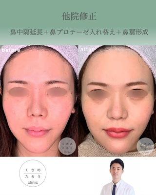 くさのたろうクリニックの他院修正 鼻中隔延長+鼻プロテーゼ入れ替え+鼻翼形成の症例写真(ビフォー)