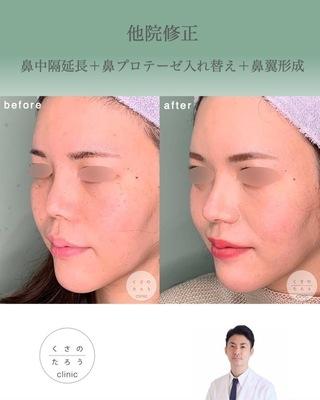くさのたろうクリニックの他院修正 鼻中隔延長+鼻プロテーゼ入れ替え+鼻翼形成の症例写真(アフター)