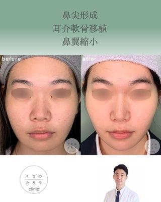 くさのたろうクリニックの鼻尖形成+耳介軟骨移植+鼻翼縮小の症例写真(ビフォー)
