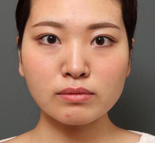 オザキクリニックLUXE新宿の二重埋没法(2点留め)+目頭切開の症例写真(アフター)