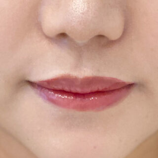 A CLINIC(エークリニック)銀座院の唇の上下バランスを見ながら注入♪スマイルリップ処置前と処置直後です【スマイルリップ】の症例写真(ビフォー)