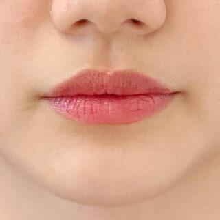 A CLINIC(エークリニック)銀座院の唇を自然にボリュームアップ!処置時間わずか5分のスマイルリップで変身しませんか?【スマイルリップ】の症例写真(ビフォー)