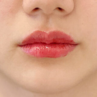 A CLINIC(エークリニック)銀座院の唇を自然にボリュームアップ!処置時間わずか5分のスマイルリップで変身しませんか?【スマイルリップ】の症例写真(アフター)