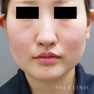 THE CLINIC(ザ・クリニック)大阪院のベイザー脂肪吸引(頬+顎下)の症例写真(ビフォー)