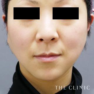 THE CLINIC(ザ・クリニック)大阪院のベイザー脂肪吸引(頬+顎下)の症例写真(アフター)