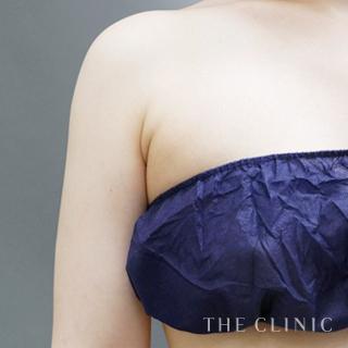 THE CLINIC(ザ・クリニック)大阪院のベイザー脂肪吸引(二の腕・肩)の症例写真(アフター)