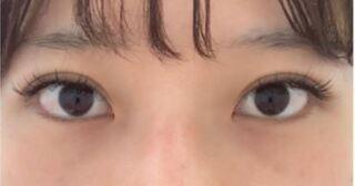 銀座TAクリニックの目頭切開の症例写真(ビフォー)