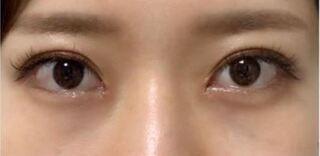 銀座TAクリニックの目頭切開の症例写真(アフター)
