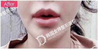 清潭女神美容外科の口角挙上+M字リップの症例写真(アフター)