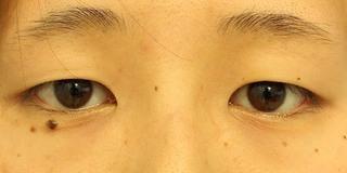グローバルビューティークリニック 大阪院の『 GBC式韓流目頭切開 』『 たるみ取り併用全切開 』の症例写真(ビフォー)