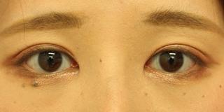 グローバルビューティークリニック 大阪院の『 GBC式韓流目頭切開 』『 たるみ取り併用全切開 』の症例写真(アフター)