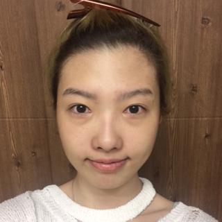 マーブル整形外科の鷲鼻矯正+顎先矯正の症例写真(ビフォー)