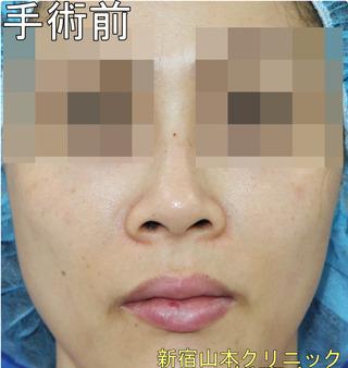 山本クリニックの小鼻縮小術(鼻翼縮小術)の症例写真(ビフォー)