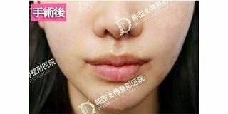 清潭女神美容外科の口角挙上+内側人中+外側人中+人中溝の症例写真(アフター)
