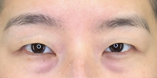 Zetith Beauty Clinicの二重埋没、目の下のクマの症例写真(ビフォー)