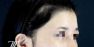 Zetith Beauty Clinicの額・こめかみ脂肪注入の症例写真(ビフォー)