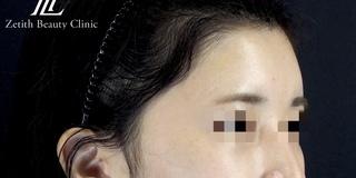 Zetith Beauty Clinicの額・こめかみ脂肪注入の症例写真(アフター)