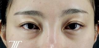 Zetith Beauty Clinicの目の下のクマの症例写真(ビフォー)